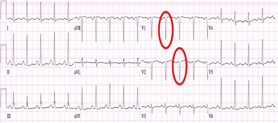 12+Lead+Ekg+Q+Wave Pathological+q+waves+on+ekg